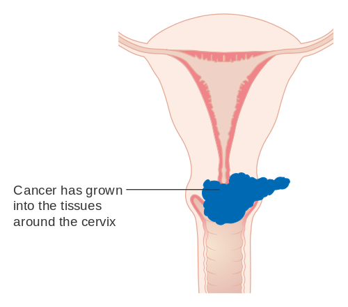 hpv ovarian cancer define papilloma dentistry