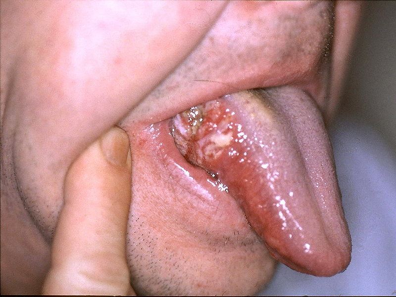 hpv neck cancer treatment