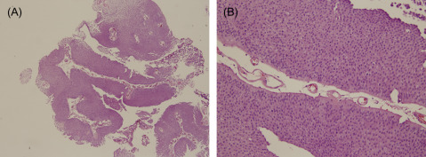 papillary urothelial survival rate gingival hpv treatment