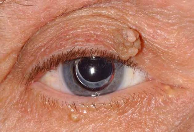 squamous cell papillomas eyelid cancer colon pubmed