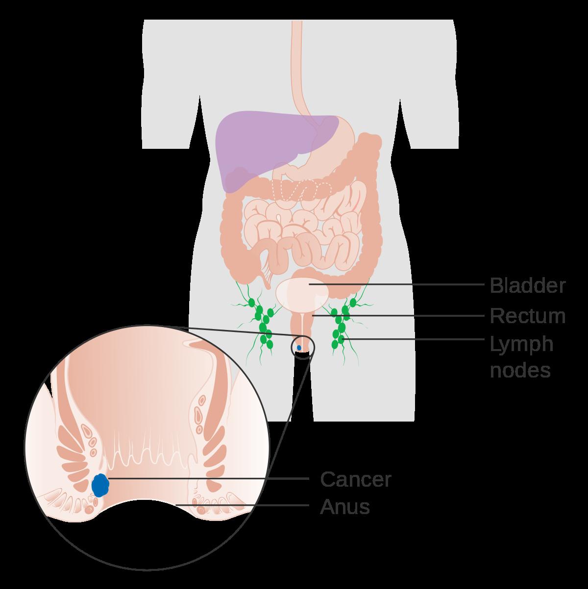 Semne și simptome cancer   Cancer