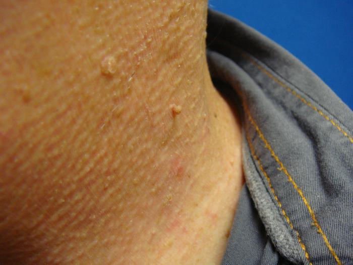 papillomi sul collo cause tratament cu sare amara pentru fiere