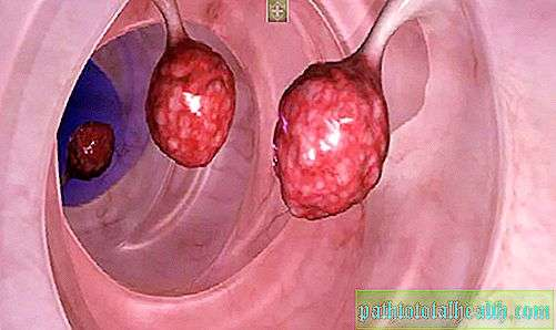 hpv related squamous cell carcinoma icd 10 hpv lung cancer symptoms
