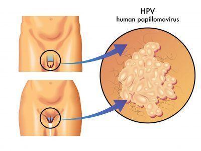 papilomavirus la bărbați cum se tratează