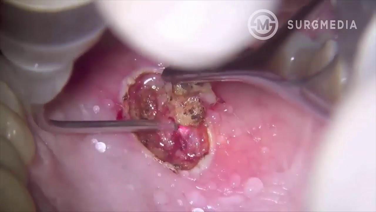 squamous papilloma tongue removal parazitii 20 cm