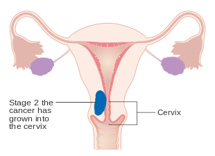 cancer uterine or endometrial