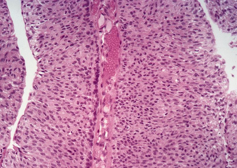papillary urothelial tumor of low malignant potential vierme de tequila