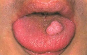 papilloma eyelid nhs cancerul de colon amg