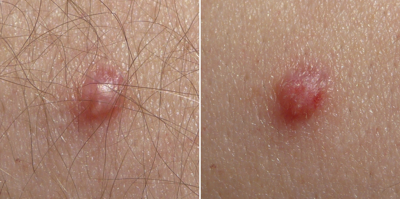 papillomas and hyperkeratosis