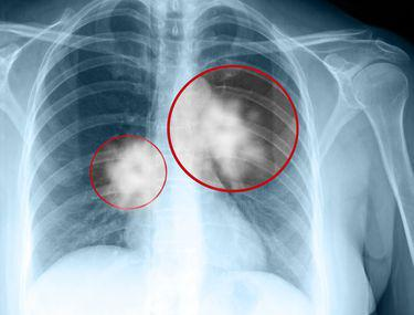 cancer de garganta pode ser hpv