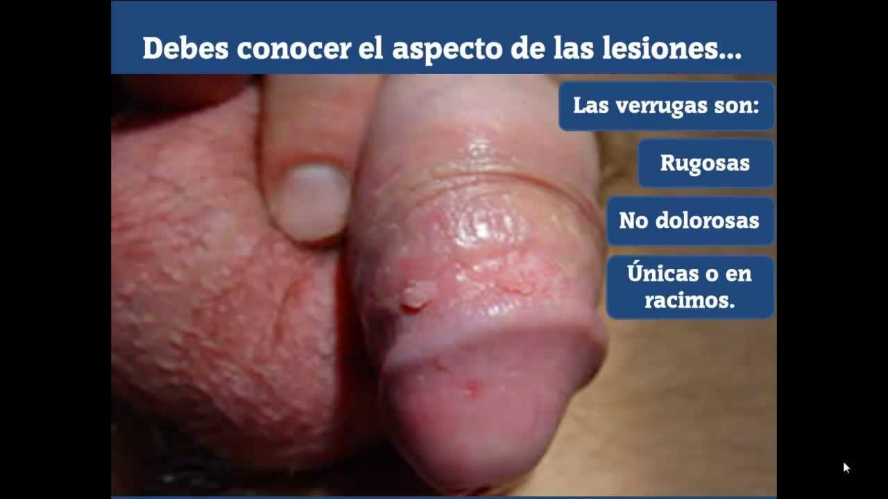 papiloma humano en los hombres como se detecta hpv scaly skin
