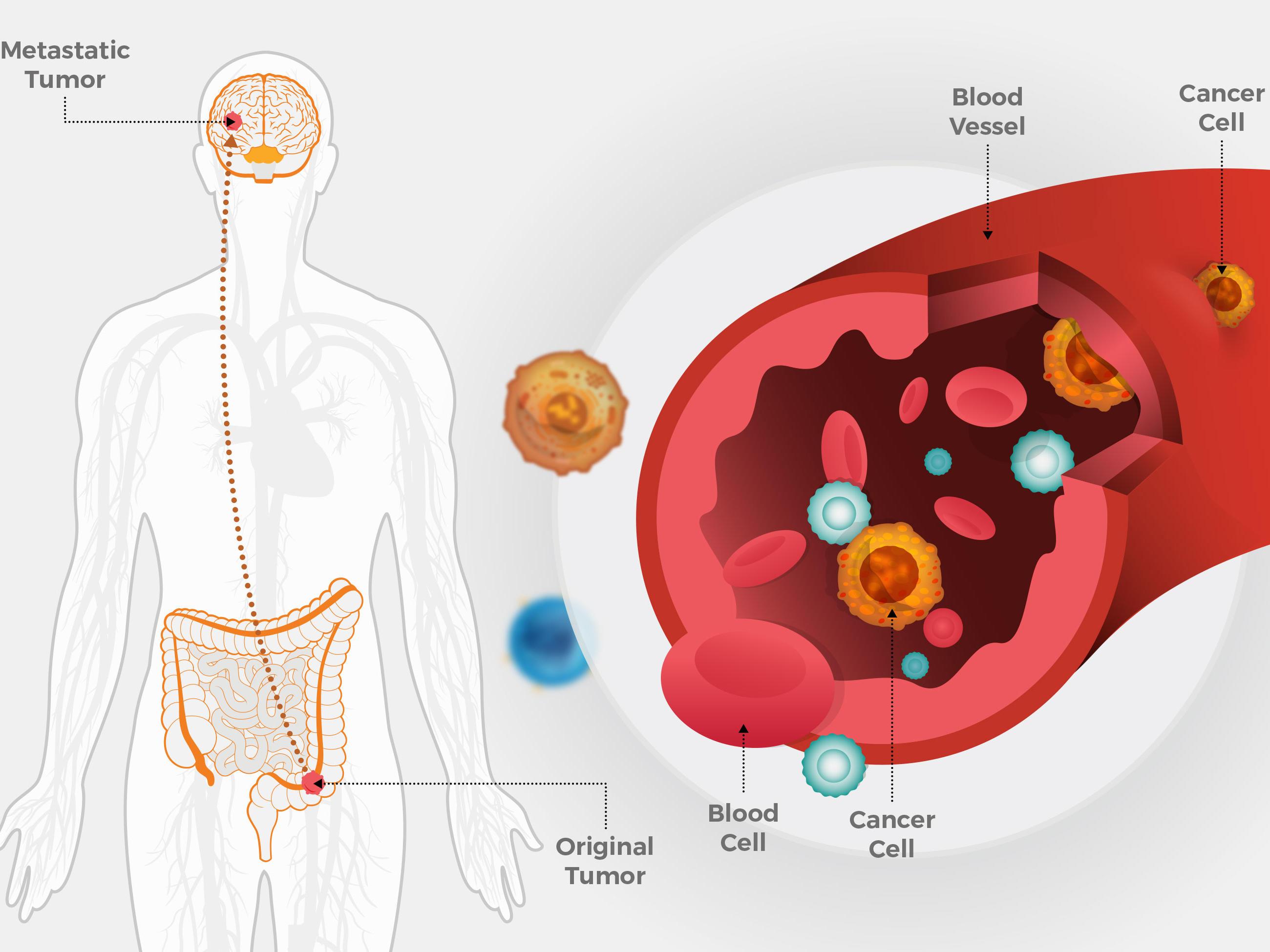 cancer at metastatic metode de detoxifiere a sistemului limfatic