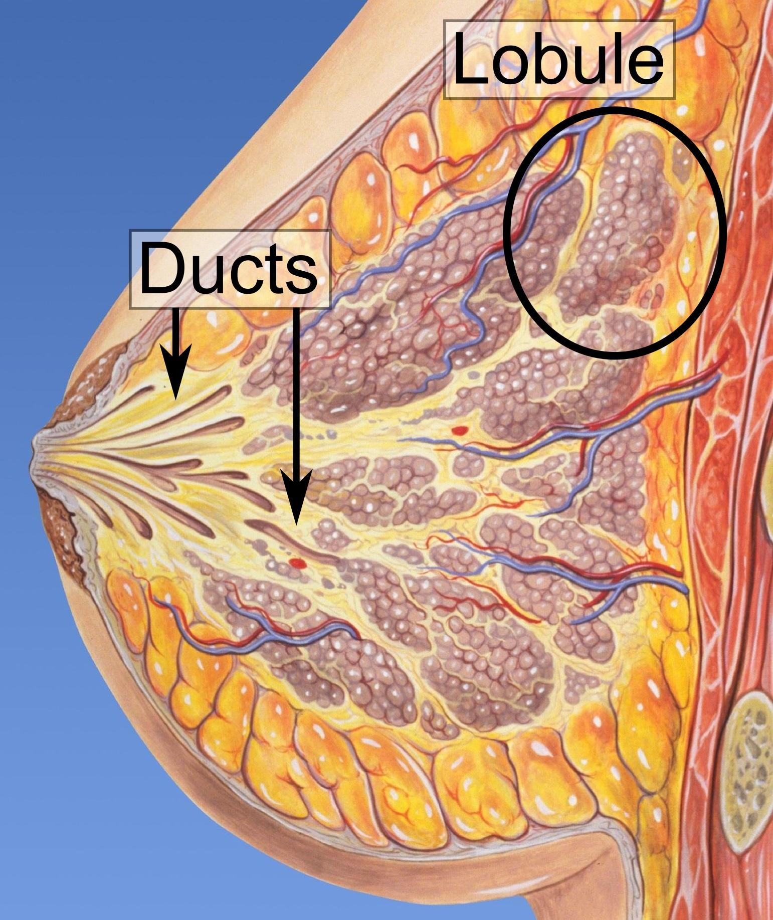 papiloma intraductal canceroso