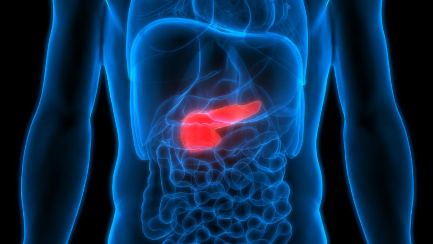 cancer pancreas que es