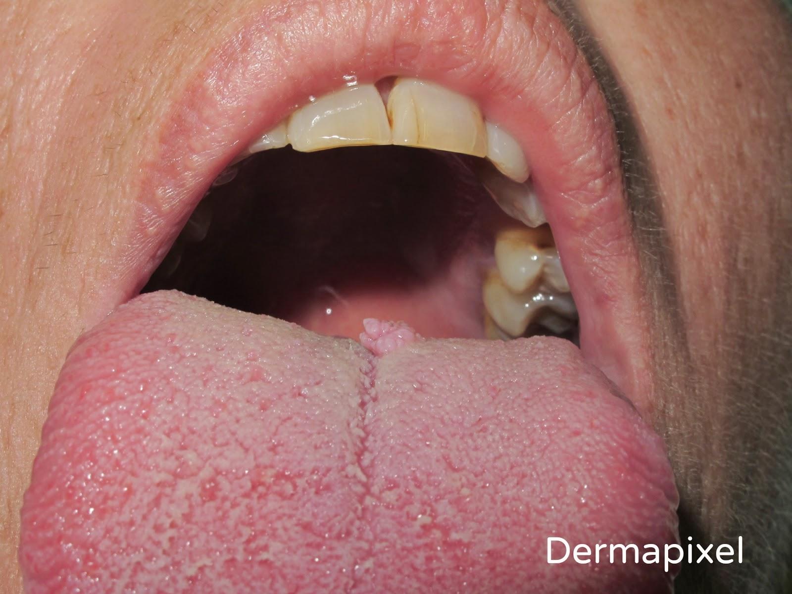 eyelid papilloma icd 10 oxiuri ataca ficatul