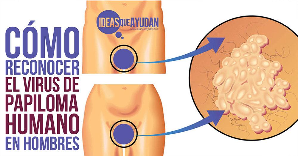 cancer la san metastaze osoase warts pregnancy common
