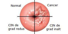 cancer de col uterin hpv