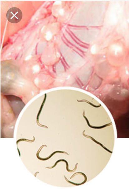 papiloma hidung adalah