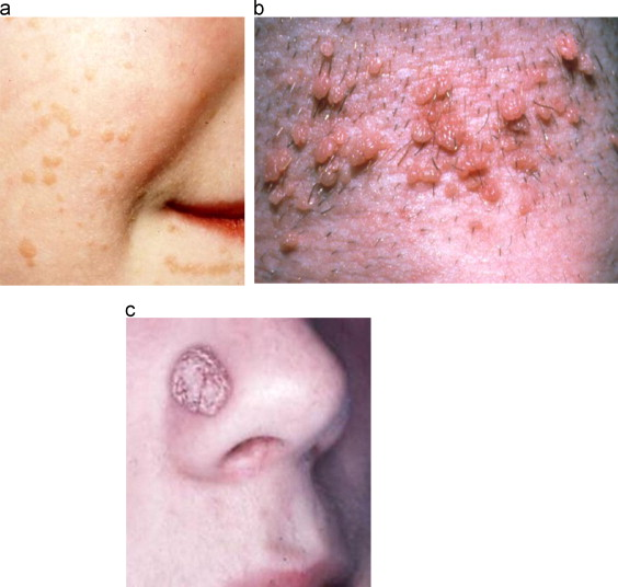 hpv impfung praparat squamous papilloma from hpv