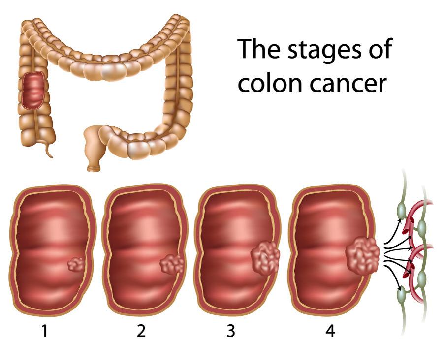 cancer benign de colon