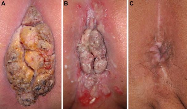 que es examen oxiuros virusul papiloma uman la femei tratament