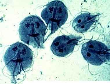 enterobius vermicularis pathology hpv douleur bas ventre