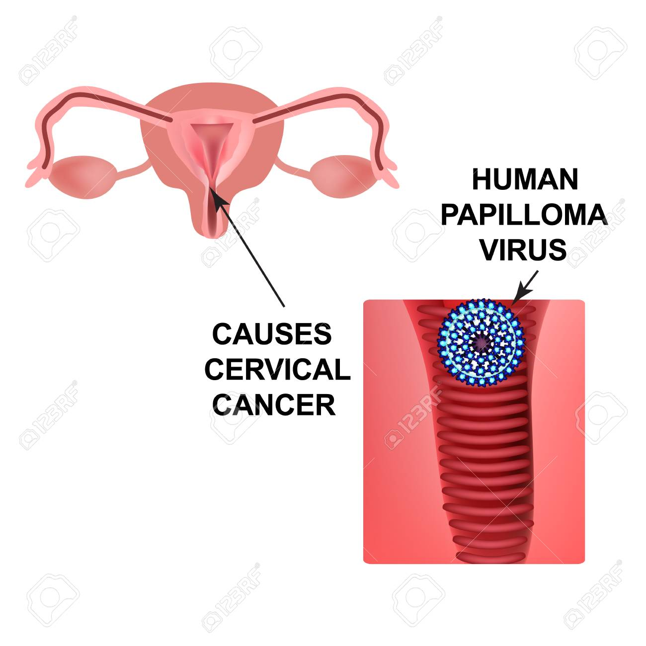 papilloma virus cancer