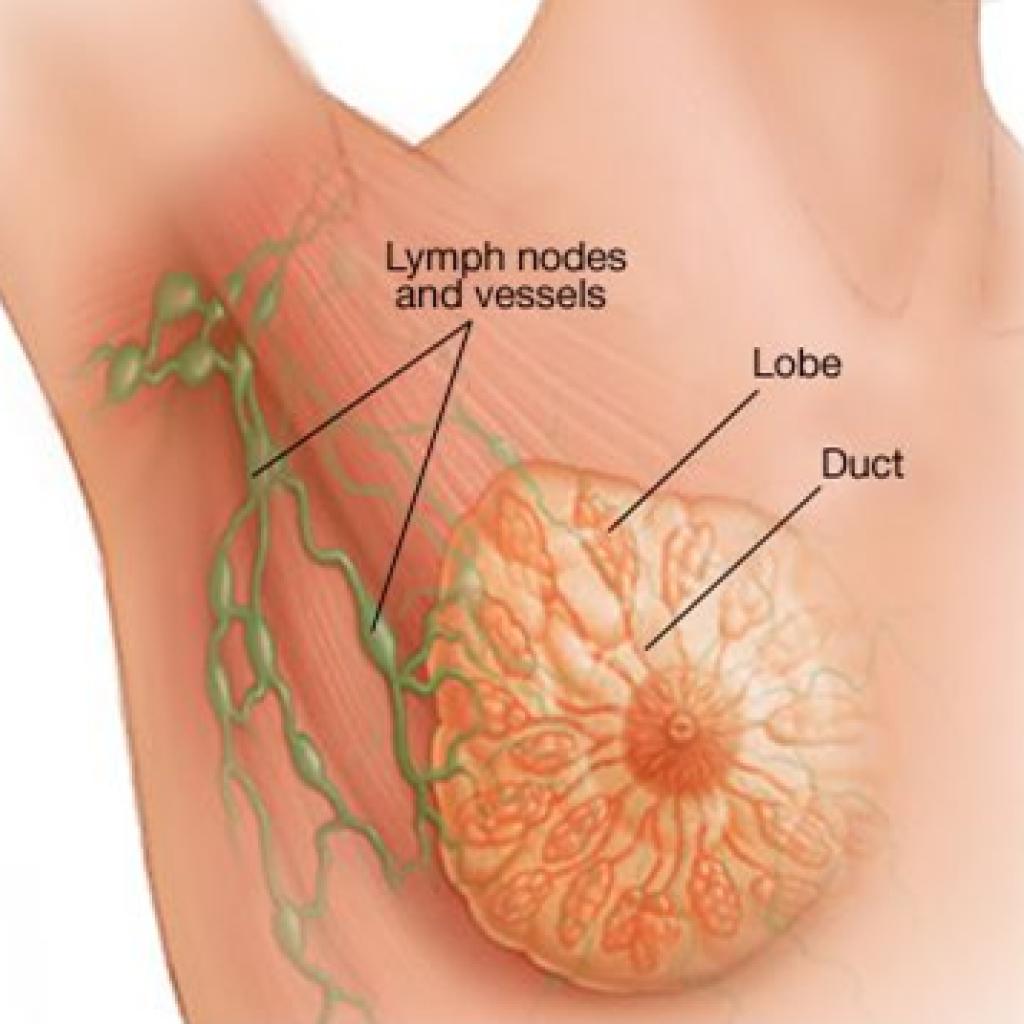 cancer la san stadiul 4 papillomavirus hpv oncogene