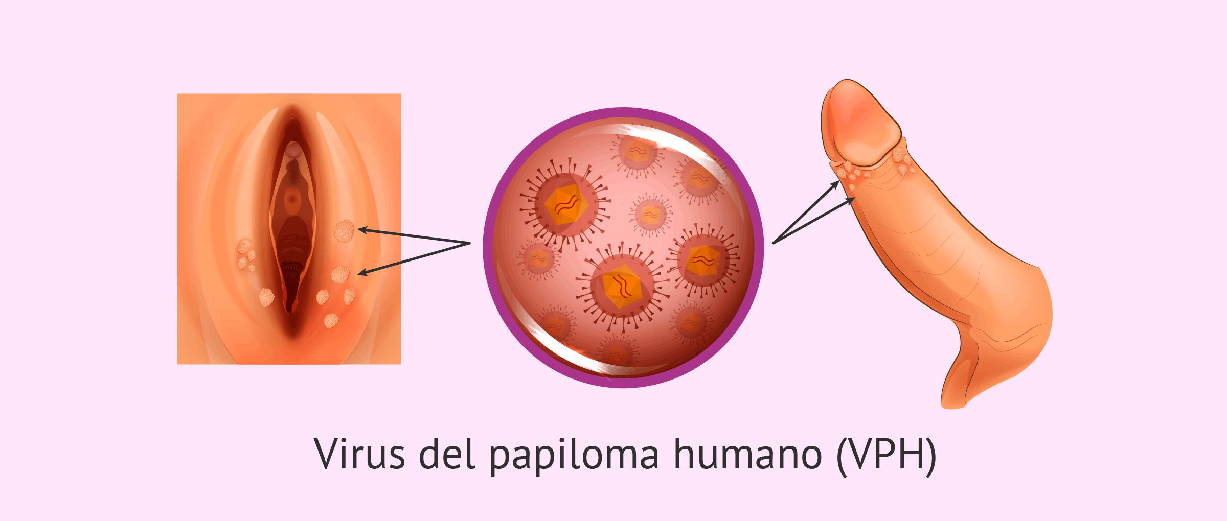 papiloma humano imagenes invazie helmintica