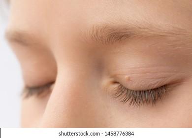 papilloma in eyelid virus del papiloma garganta