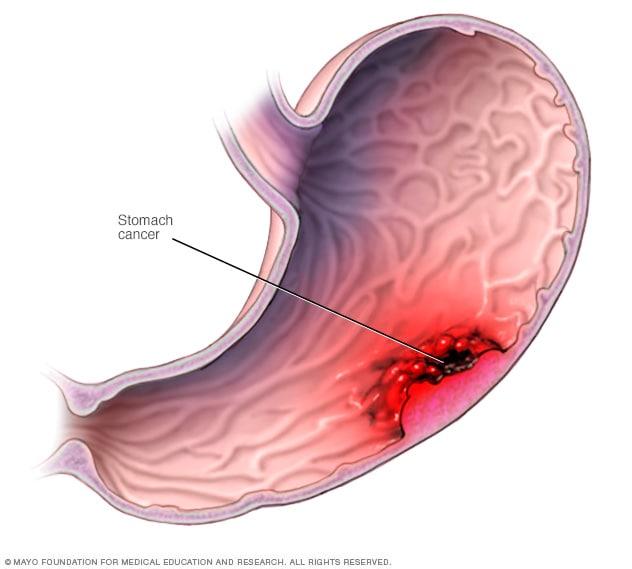 Cancer gastric (cancer de stomac): simptome, diagnostic si tratament