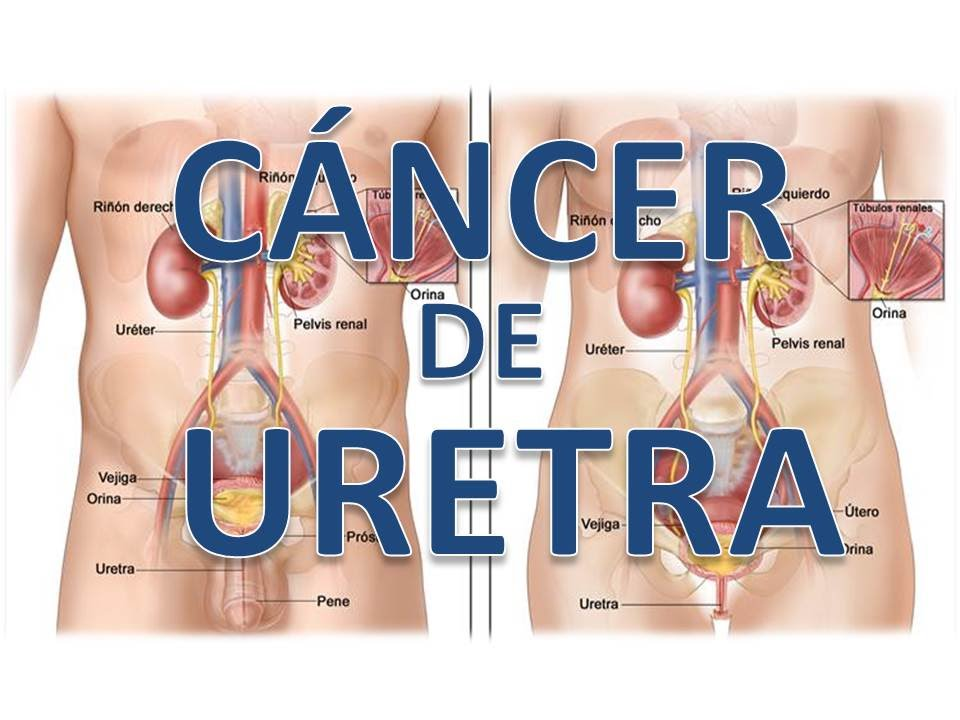 cancer de uretra sintomas cancer metastatic hepatocellular