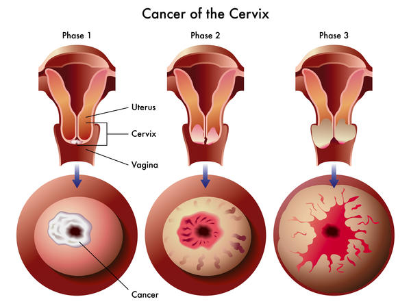genital warts and cervical cancer infection genitale papillomavirus