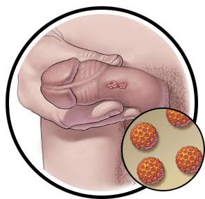 papillomavirus male