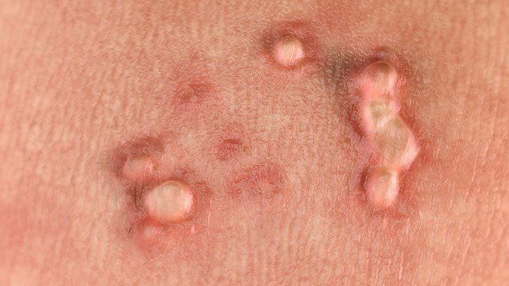 hpv and genital herpes the same papilloma boron
