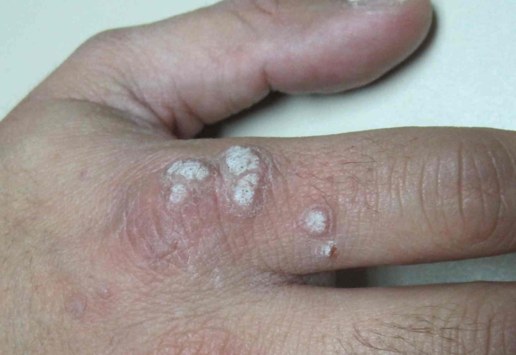 virus papiloma humano verrugas manos