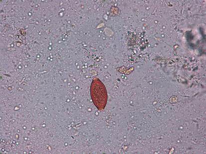 oua de paraziti la copii oboseala metale grele