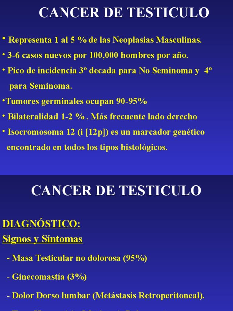 cancer testicular ppt