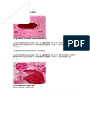 candida toxine ausleiten neck papilloma removal