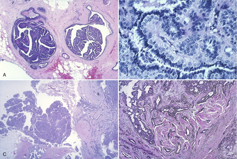 papilloma planoepitheliale cutis cancer recidiva prostata