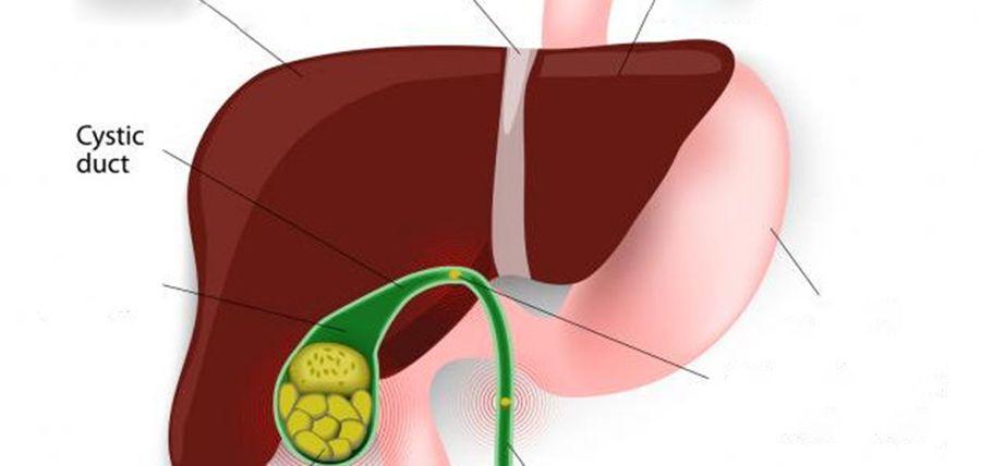 cancerul de colon simptome si cauze