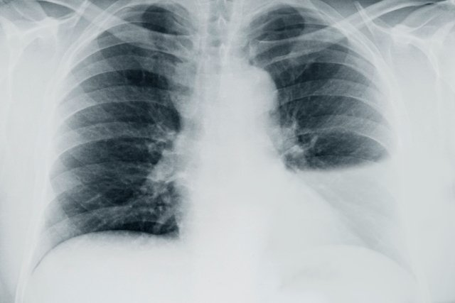cancer pulmonar y derrame pleural