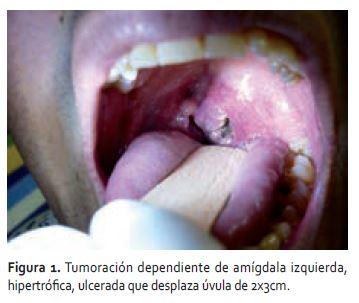 cancer col uterin medicina