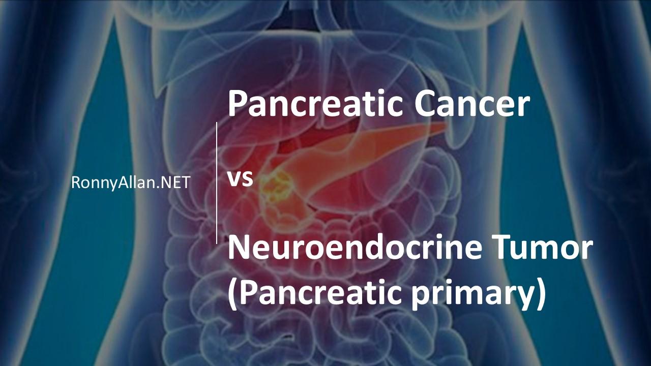 neuroendocrine cancer throat