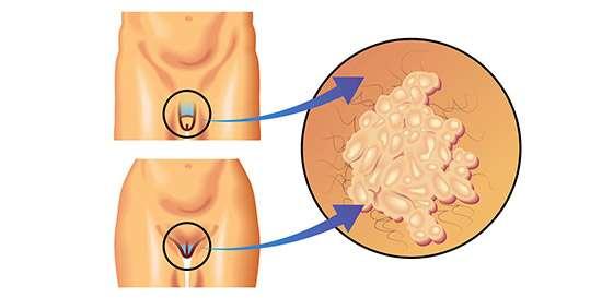 papilomavirus en hombres y mujeres
