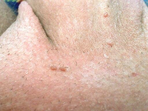 papilloma virus gyogyitasa