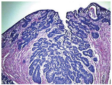 papiloma urotelial tratamiento cancer de laringe e faringe