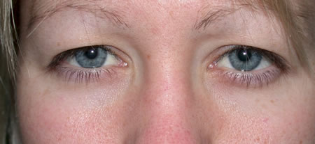 papilloma eyelid nhs cancer sarcoma types