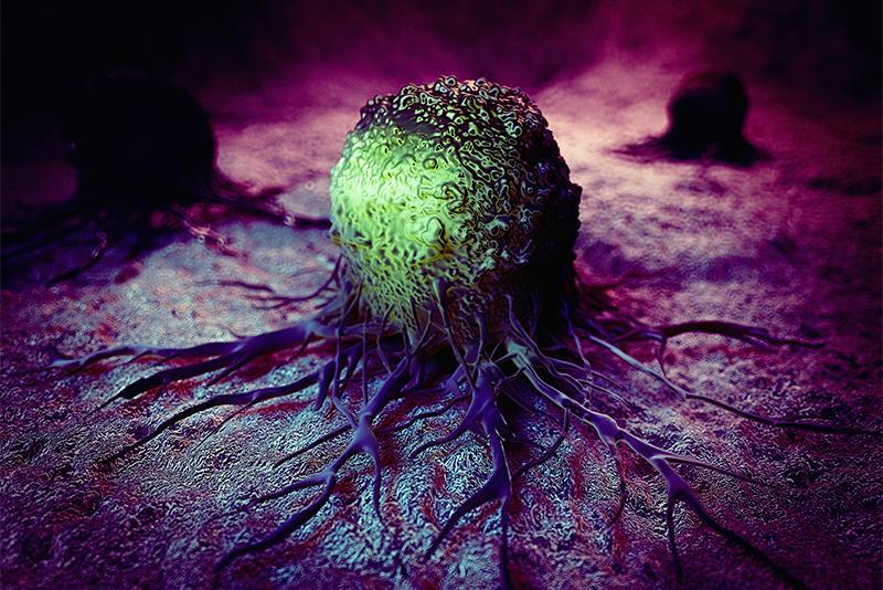 cancer benign de colon papillary thyroid cancer with metastasis prognosis