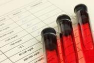 analize pentru depistarea oxiurilor hpv foot wart treatment